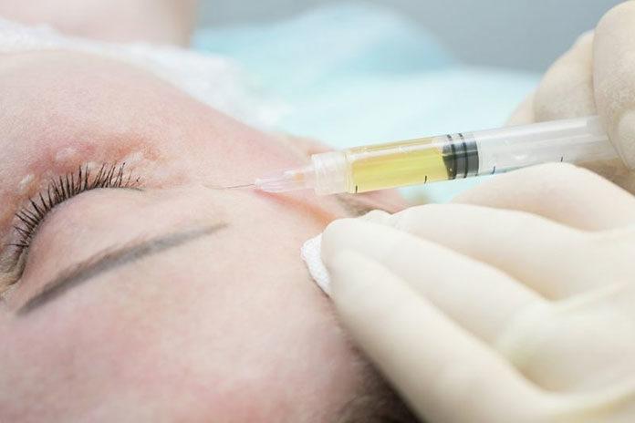 4 rzeczy, o których musisz pamiętać decydując się na mezoterapię